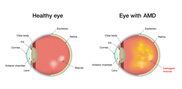 macular degeneration the efffects of essay Macular degeneration essays: over 180,000 macular degeneration essays, macular degeneration term papers, macular degeneration research paper, book reports 184 990 essays, term and research papers available for unlimited access.